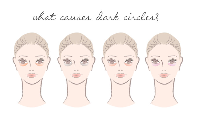 f7daa7a28dcc59 What Causes Dark Circles Under Your Eyes? | Yon-Ka Skin Care Blog